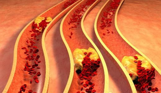 八种蔬菜帮你通血管垃圾 预防血管堵塞的方法