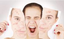 推荐祛痘的洗脸正确方法 消除痘痘有妙招