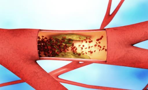 血栓是怎么形成的?如何远离血栓?