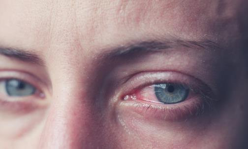 导致红血丝过多的原因 眼睛红血丝需多冷敷眼部降温