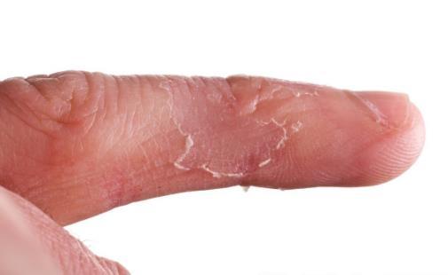 造成手部脱皮的原因 预防手脱皮日常需要做的保养