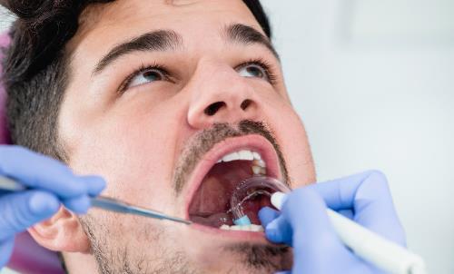 为了美白反而伤害牙齿 洗牙并不是你想象中的可怕