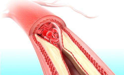 教你在日常饮食中的减少脂肪量摄入 血脂高食物推荐