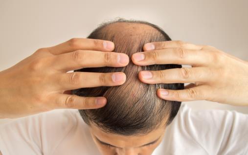 头发少要怎么保养?四个问题要注意
