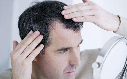 年轻人长白发的心理危害 日常养发护发小妙招