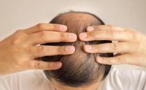 脱发厉害是身体出了问题 怎样才能长出浓密秀发