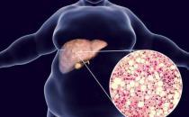 脂肪肝的原因 肥胖和饮酒导致脂肪肝的形成