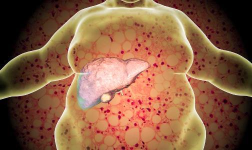 脂肪肝患者饮食禁忌有哪些 预防脂肪肝的食物要多吃