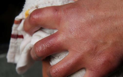 冬季长冻疮太难受 自制冻疮膏让你的双手恢复如初