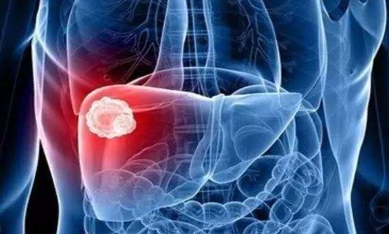 """保护肝脏的9个关键点 防范""""天敌""""来护肝"""