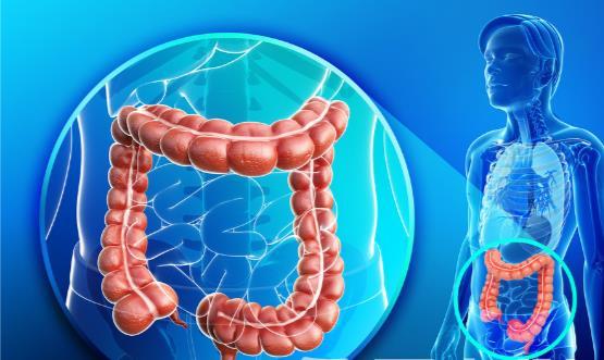 肠癌的早期症状是隐蔽的 这几类食物最容易招来肠癌