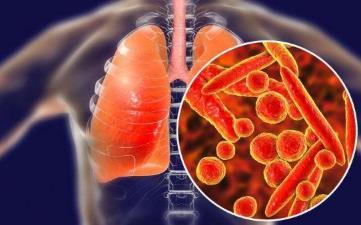 【新型冠状病毒肺炎】武汉新型冠状病毒感染肺炎早期症状、潜伏期、预防、治疗