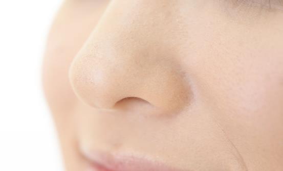 鼻子老是红红的怎么办