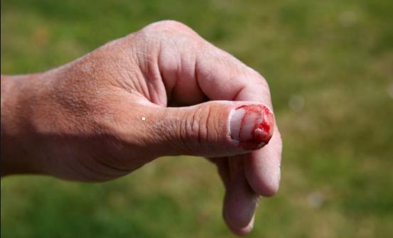 手扎刺不挑出来会有怎样的后果 巧挑肉中刺的小窍门
