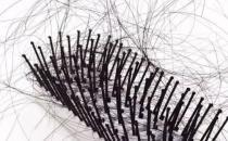 女性白领改善脱发问题 推荐10款食谱防脱发